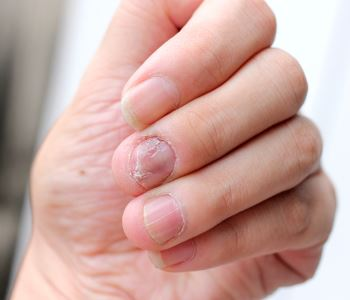 laser-treatment-for-nail-fungus-bend-or-a