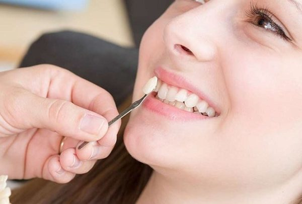 Giải đáp: Trồng răng giả mất thời gian bao lâu? 74
