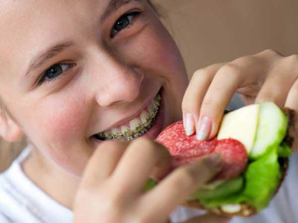 Giải đáp: Niềng răng đau nên ăn gì thì tốt?