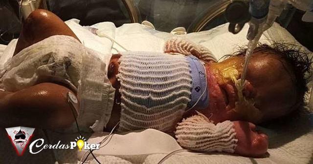 Ajaib! Bayi ini Lahir Tanpa Kulit, Sharing Sang Mama Sangat Memilukan
